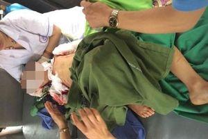 Bé 7 tuổi ở Thái Nguyên bị khâu 200 mũi qua đời do chó nhà cắn