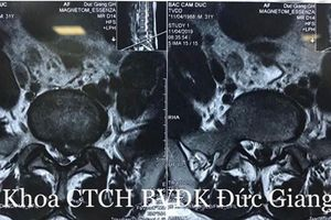 Trì hoãn điều trị khiến bệnh lý cột sống trở nặng