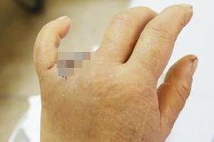 Mắc nhẫn vào cửa ôtô, một phụ nữ mất ngón tay