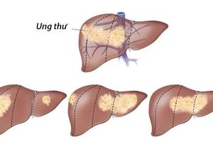 Bệnh ung thư gan sống được bao lâu?