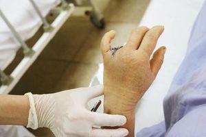 Người phụ nữ mất 2 đốt ngón tay vì thói quen hằng ngày nhiều người mắc phải