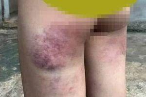 Cô giáo đánh bầm mông học sinh lớp 4 vì không làm được bài tập