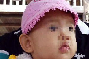 Cần làm rõ nguyên nhân bé 29 tháng tuổi bị sốt, tiêu chảy tử vong tại bệnh viện
