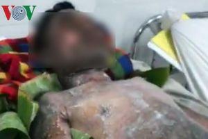 Bạc Liêu: Nam thanh niên bị bỏng nặng do bếp gas mini phát nổ