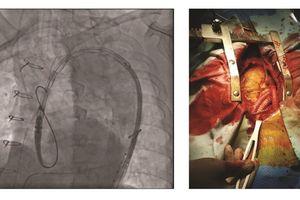 Phẫu thuật thành công phình động mạch chủ ngực bằng kỹ thuật Hybrid