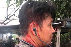 Người đi đường bị đánh đổ máu vì thắc mắc hủ tiếu bình dân giá 100 nghìn đồng/tô