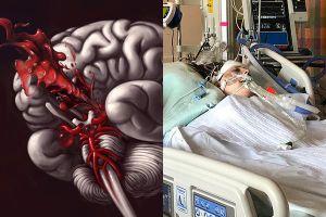 Thiếu nữ 15 tuổi bất ngờ đột quỵ, triệu chứng rất hay gặp ai cũng cần biết