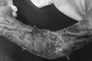 Bé trai 19 tháng tuổi chập chững ra đường bị xe tải tông dập nát cánh tay