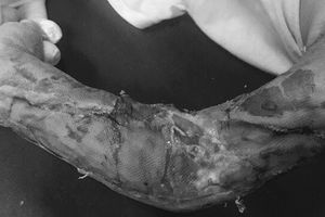 Hai lần phẫu thuật cứu cánh tay dập nát cho bé 19 tháng tuổi