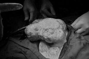Bé 12 tuổi bị u quái buồng trứng khổng lồ