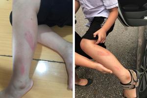 Cô giáo đánh tím mặt, chân học sinh vì làm bài chậm