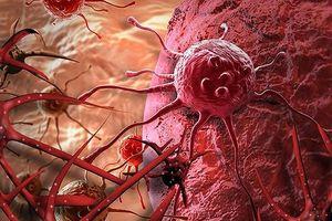 Đau đầu, nôn ói vào viện khám phát hiện ung thư di căn