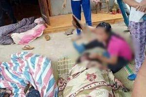 Vụ cháy khiến đôi trai gái bỏng nặng: Người phụ nữ đã tử vong