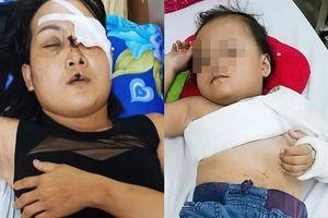 Chở con gái đi thăm ông ngoại bệnh nặng, người mẹ đâm đầu vào trụ đèn, phải bỏ một bên mắt