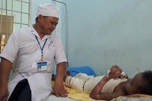Kon Tum: Vận động đưa cháu bé 9 tuổi bị hoại tử do bỏng đi cứu chữa