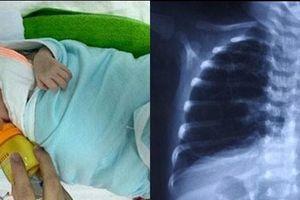Trẻ khò khè, hay bị viêm phổi: Có thể đã bị dị dạng đường thở