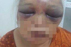 Hà Nội: Mẹ vợ bị con rể cũ đánh dã man lúc rạng sáng