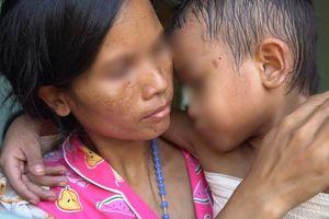 Kỳ diệu hành trình đưa cậu bé 9 tuổi bị bỏng xăng trở về từ cõi chết