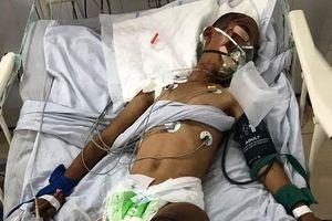 Cậu bé mồ côi bị xe tải đâm nguy kịch, kẻ gây tai nạn bỏ chạy