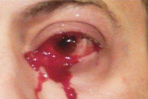 Đang bình thường, người đàn ông hoảng hốt thấy mình khóc ra máu