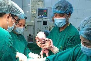 Ca sinh 3 cùng trứng cực hiếm gặp, 200 triệu ca mới xuất hiện 1 ca