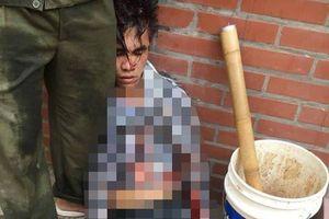 Hà Nội: Trộm xe trong lúc người dân đang chữa cháy, nam thanh niên bị đánh nhừ tử