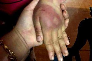 Bé gái 8 tuổi bị bố đánh đập dã man, mẹ xin miễn hình sự