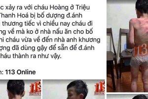 Xác minh thông tin bé trai bị bố dượng đánh đập dã man ở Thanh Hóa