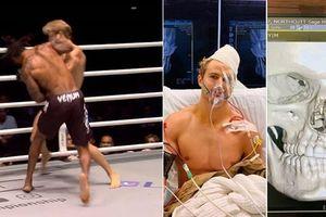 Võ sĩ MMA dính đòn gãy 8 xương mặt, trong ngày đầu tiên ra mắt giải đấu