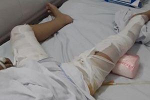 Tháo đinh sau phẫu thuật, bệnh nhân bị bỏng nặng vì PGĐ bệnh viện vô ý
