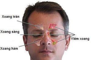Bệnh ung thư 'ăn' vào não có dấu hiệu chỉ từ đau đầu, nhìn kém