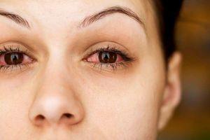 Mắt đỏ khi uống rượu cảnh báo điều gì?
