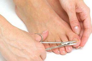 Hoại tử nặng vì cắt khóe móng chân tại nhà