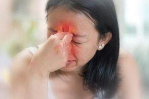 Viêm xoang cấp - mãn tính: Nguyên nhân, dấu hiệu và cách chữa triệt để
