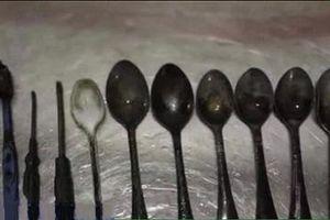 Kỳ lạ người đàn ông nghiện ăn thìa, nĩa, dao và bàn chải