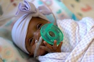 Em bé sơ sinh nhỏ nhất thế giới, nặng hơn 200 gram vẫn sống sót kỳ diệu