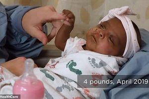 Em bé sinh non nặng chưa bằng một quả táo sống sót thần kỳ