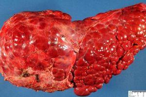 4 biểu hiện nhỏ trên cơ thể cảnh báo gan ngày càng yếu ớt, suy nhược