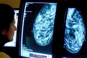 Loại thuốc mới giúp tăng cơ hội sống cho bệnh nhân ung thư vú