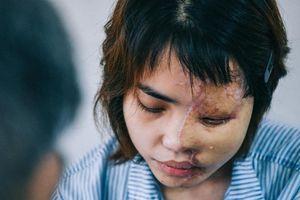 Tấn công bằng axit - vấn nạn khiến thế giới vùng vẫy kêu khóc