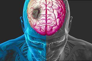 Chuyên gia cảnh báo: Thời gian vàng phục hồi chức năng cho bệnh nhân đột quỵ chỉ khoảng 6 tháng