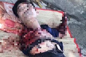 Người đàn ông bị hổ cắn đứt hai tay: Nhân viên cũ