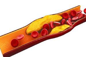 Bác sĩ ơi: Tuổi nào nên bắt đầu tầm soát bệnh tim mạch?