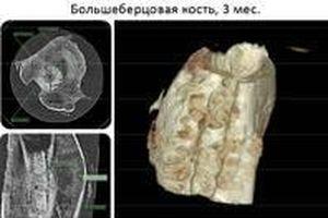 Nga phát triển vật liệu ghép xương độc đáo