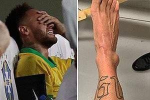 Neymar tiết lộ cổ chân sưng to như quả bóng golf sau khi khóc ngay trên sân