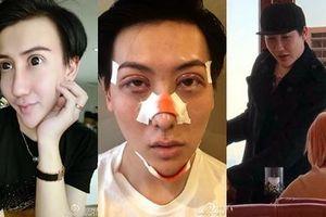 'Chàng trai mặt rắn' lộ gương mặt thay đổi đáng sợ sau phẫu thuật thẩm mỹ