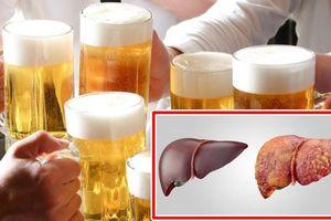 Những tổn thương gan phải 'gánh' nếu sử dụng quá nhiều bia rượu