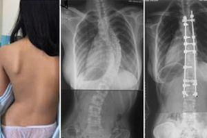 Bệnh viện Bạch Mai khám, tư vấn miễn phí cho các bệnh nhân có bệnh lý cột sống