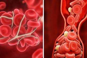 10 cách ngăn ngừa cục máu đông có thể cứu mạng sống