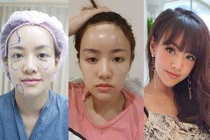 Ca sỹ người Thái lột xác ngoạn mục sau khi quyết định tiêm mỡ tự thân, trẻ hóa khuôn mặt